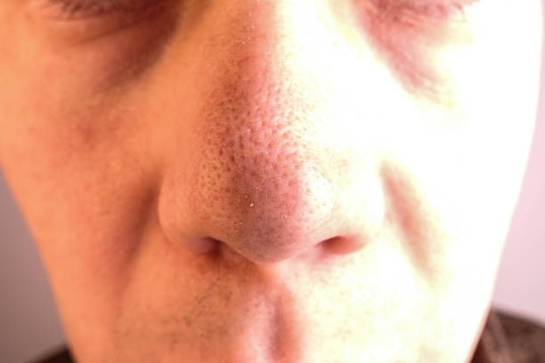 Big pores and blackheads on nose stock photo