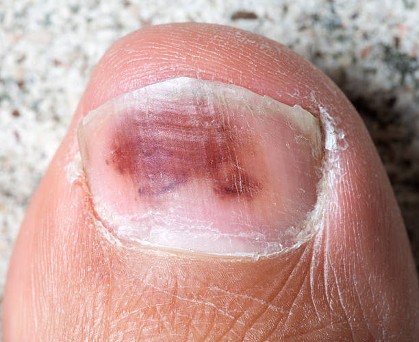 Big Toe Hallux, Bruise Hematoma stock photo