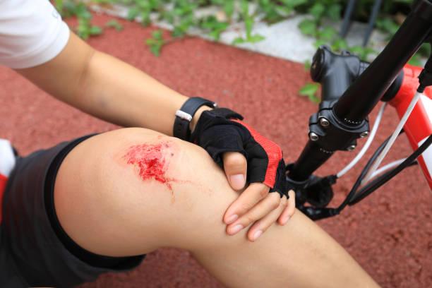 Fahrradverletzungen, Radfahrerin beim Radfahren gestürzt, beide Knie verletzt – Foto