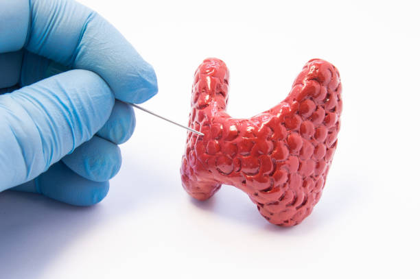 Biopsy of thyroid gland procedure. Doctor hold puncture needle in hand near anatomical 3D model of thyroid gland, ready to pierce its tissue. Concept photo for invasive diagnosis of thyroid disease stock photo