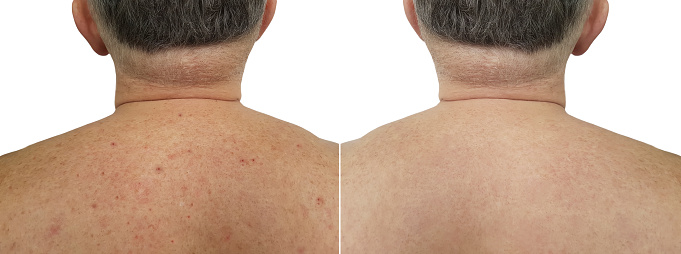 istock birthmark pimples on the back men bad skin before and after treatment 918184020