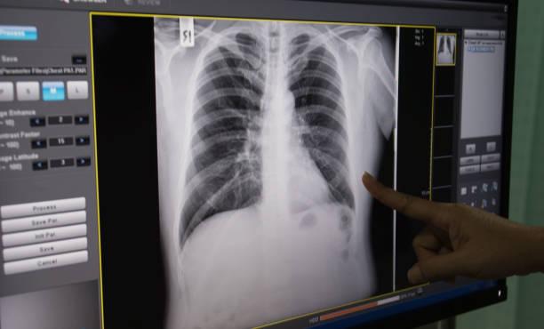 black and white body , rib ,lung , heart , film X-ray stock photo