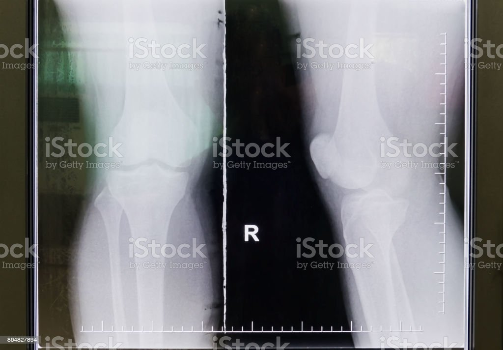 black and white Knee film X-ray stock photo