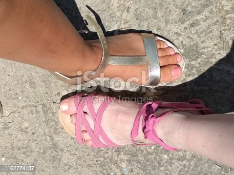 Image of two female foot, comparing skin tone. First and last day of vacation. Before and after concept.