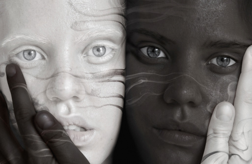 What Eye Problems Result From Albinism