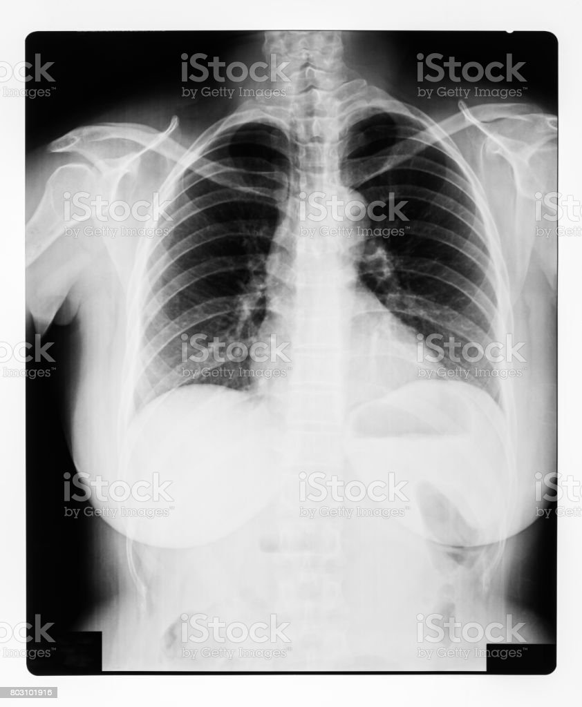 black and white X-ray Image of a human chest for a medical diagnosis stock photo