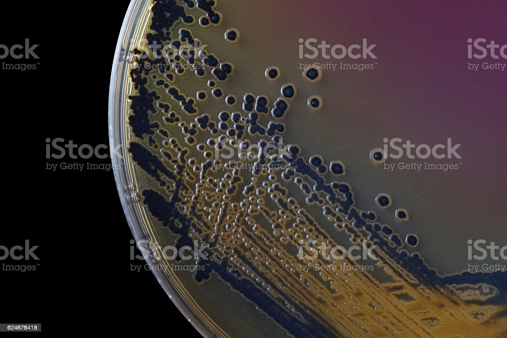 Black bacterial colonies of Salmonella species on Salmonella Shi stock photo