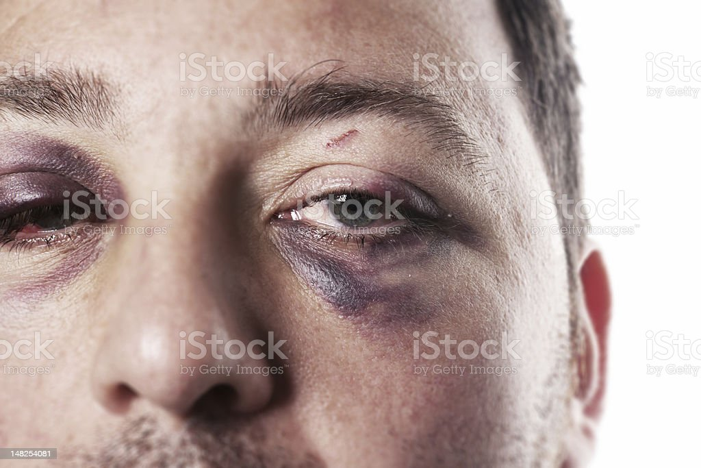 black eye injury accident violence isolated stock photo
