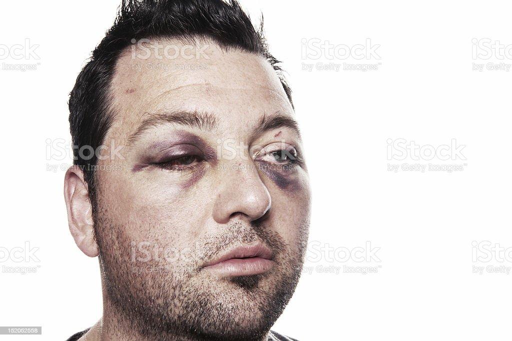 black eye injury accident violence isolated stock photo
