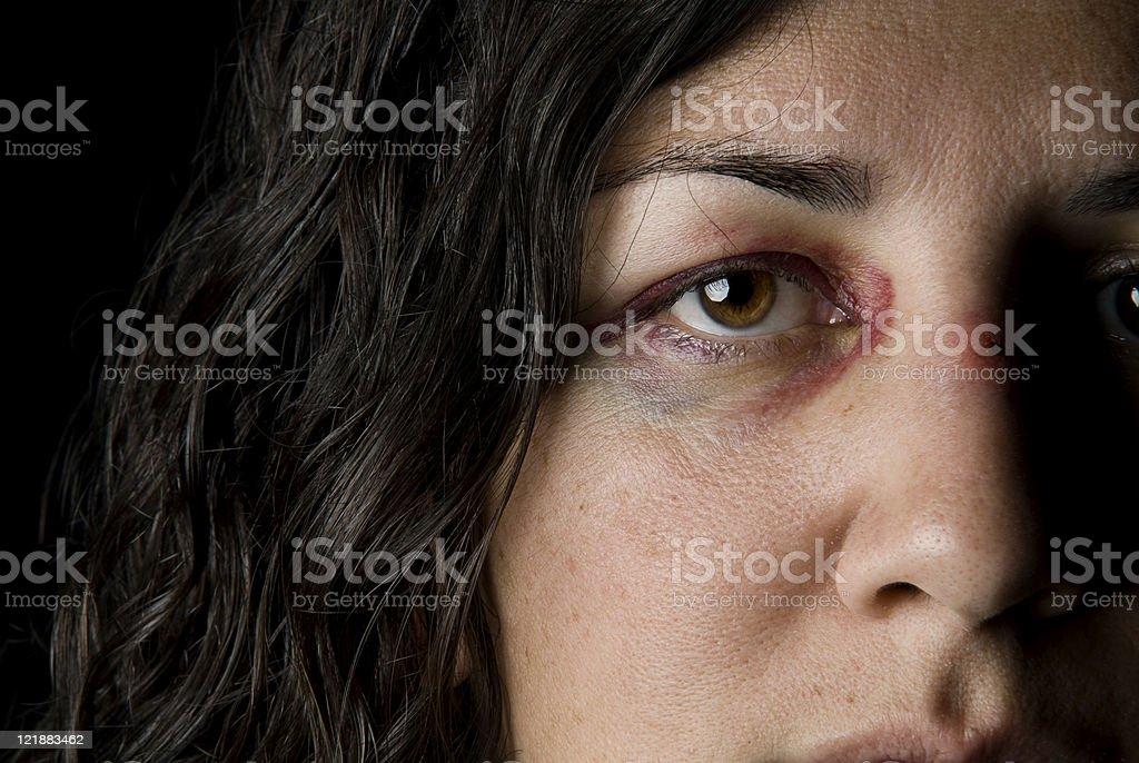 Black Eye royalty-free stock photo