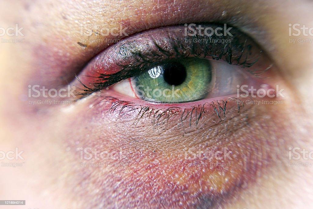 Black Eye stock photo