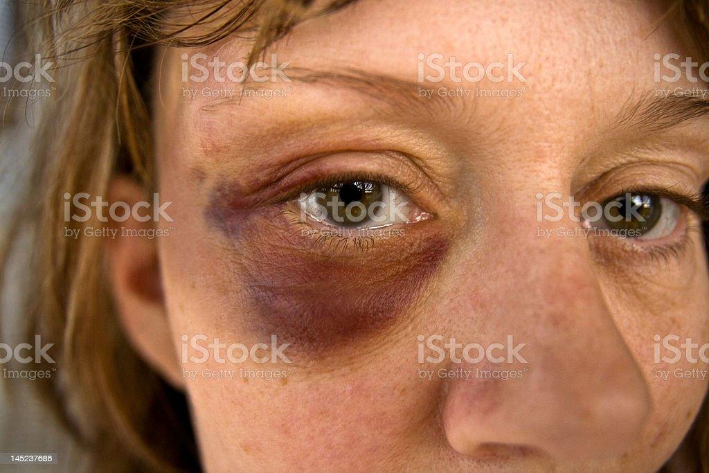 black eye. stock photo