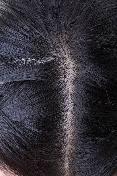 black hair with dandruff on head, close-up image stock photo