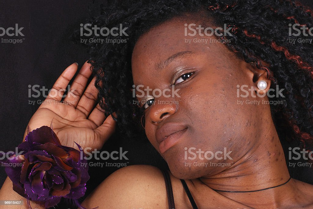Black lady with bad acne and spots royalty-free stock photo