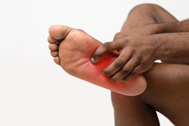 Black man scratching bare foot with red rush Afro man scratching bare foot, Athlete's foot syndrom, common skin infection caused by fungus, cropped dermatology Black Heel stock pictures, royalty-free photos & images