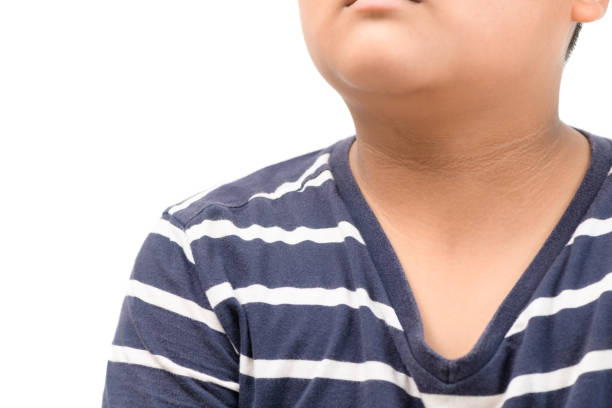 Black marks of the skin around the neck  of fat boy stock photo