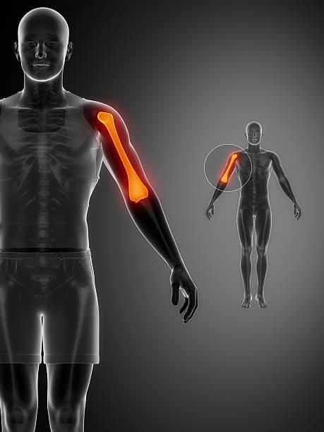 HUMERUS black x--ray bone scan stock photo