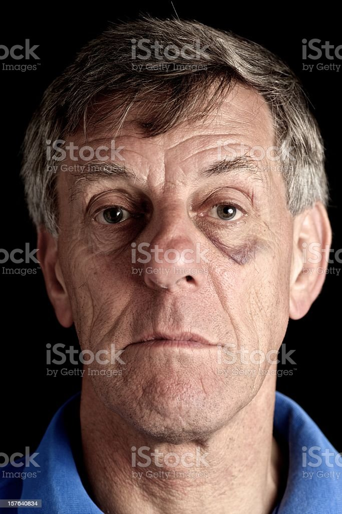 Blackeye... stock photo