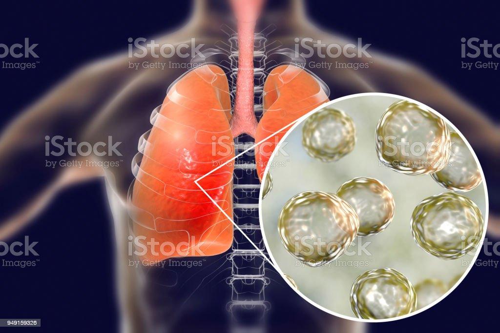 Blastomyces dermatitidis infecção dos pulmões - foto de acervo