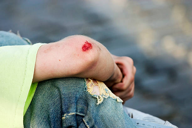 Bleeding Elbow stock photo