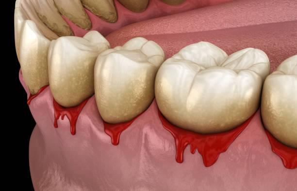 bloedend tandvlees of parodontis - pathologische ontstekingstoestand van het tandvlees en botondersteuning. tandheelkundige 3d-illustratie - tandvleesontsteking stockfoto's en -beelden