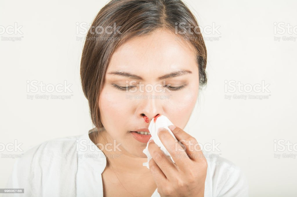 Bleeding in the nose and women stock photo