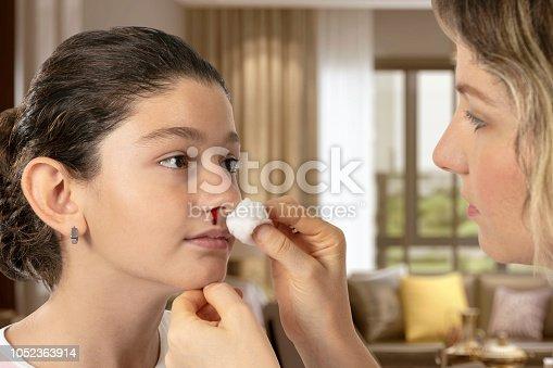 Nosebleed - Injury, Child, Nose, Blood, Care
