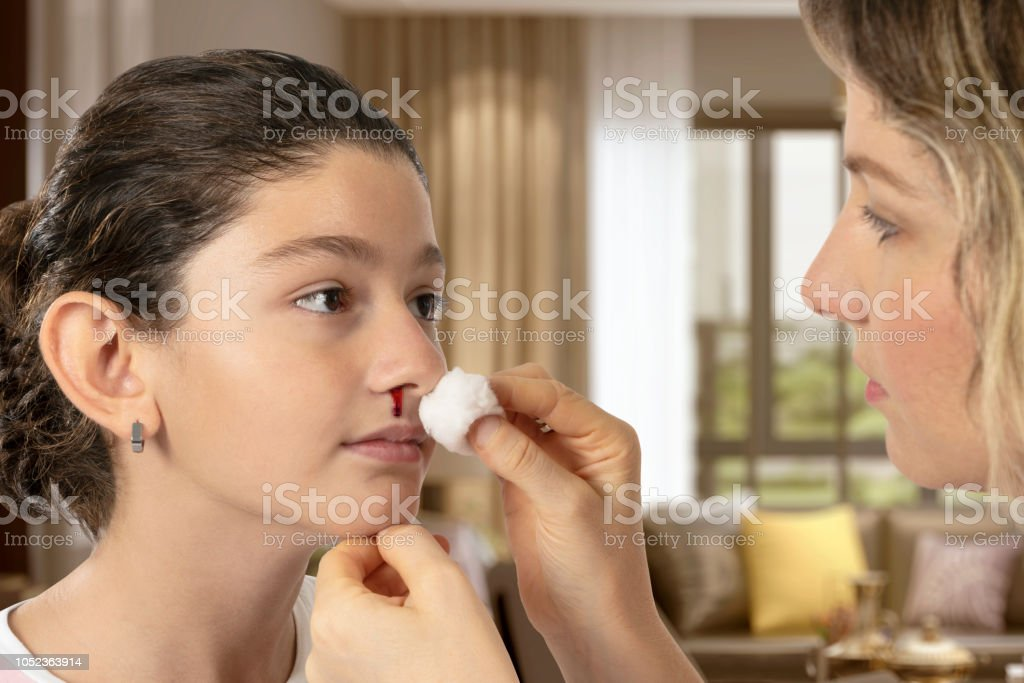 Bleeding in the Nose of the Child stock photo