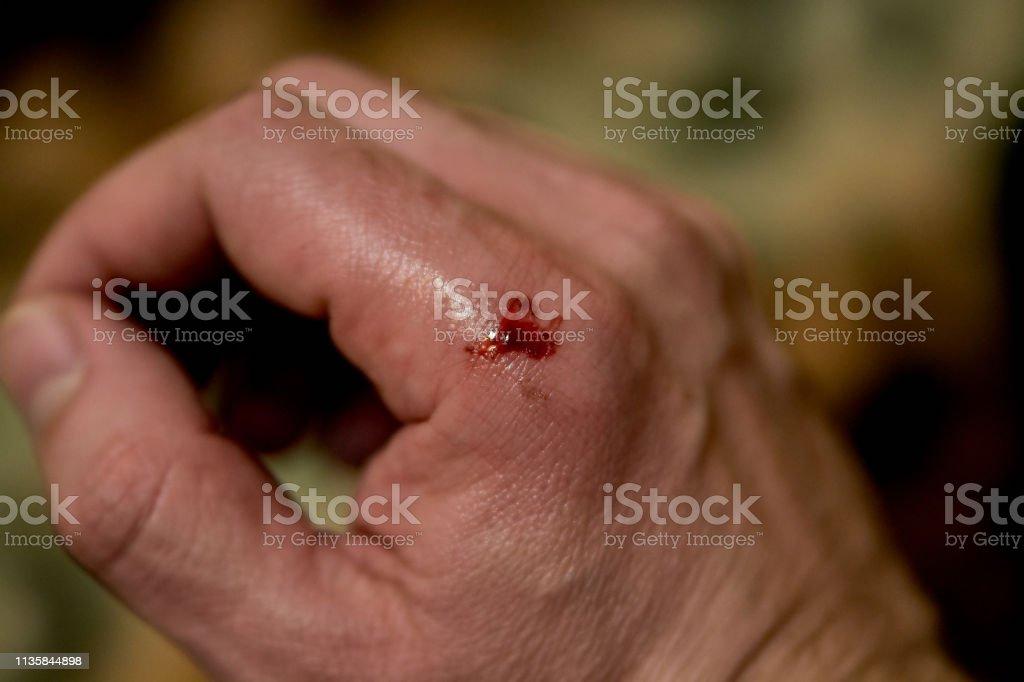 hematoma e hemorragia
