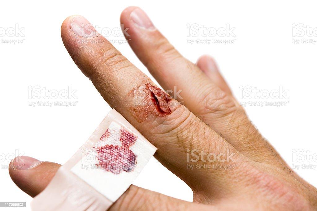 Bleeding Wound stock photo