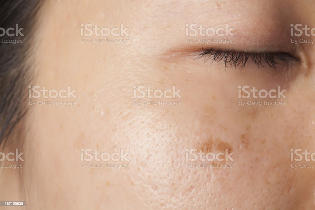 Blemish and spots stock photo