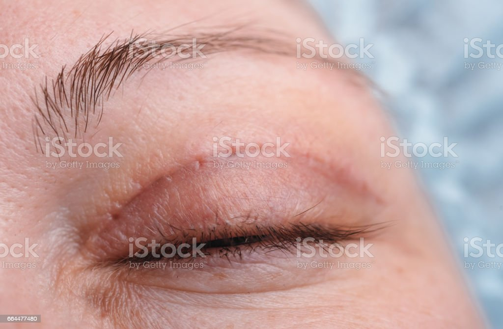 Blepharoplasty of the upper eyelid. stock photo