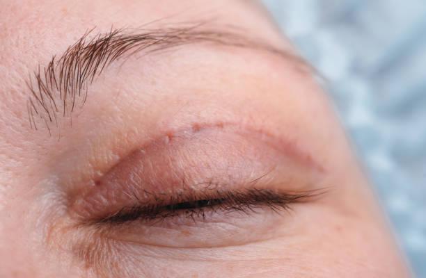 blepharoplasty of the upper eyelid. - eyelid stock pictures, royalty-free photos & images