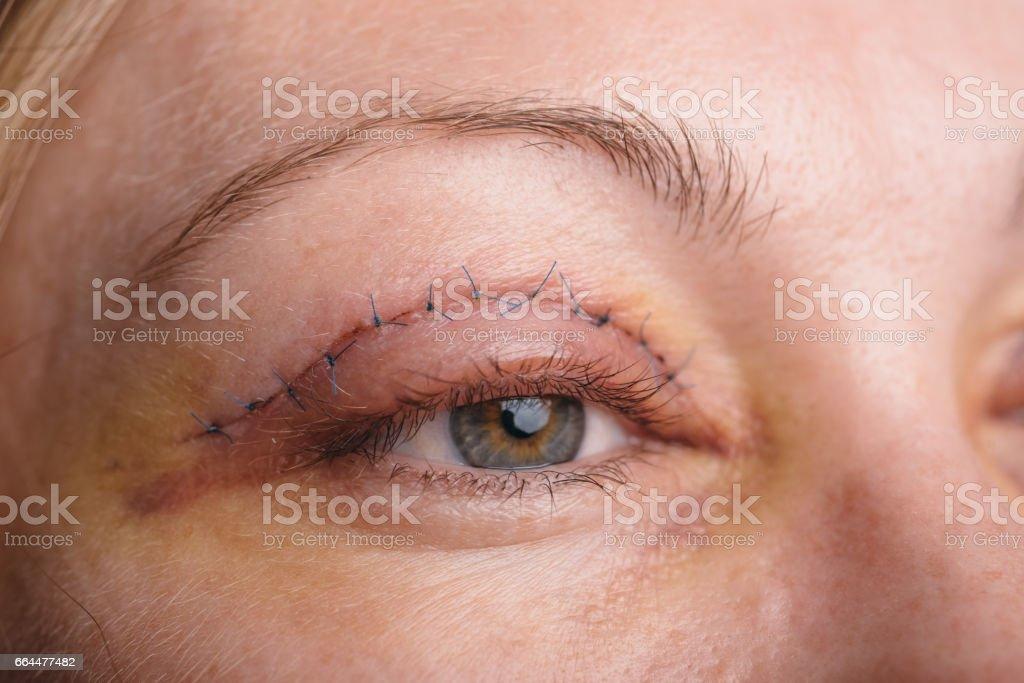 Blepharoplastik des oberen Augenlids. – Foto