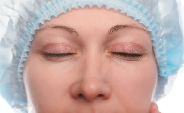 blepharoplasty of the upper eyelid. - eyelid stock photos and pictures