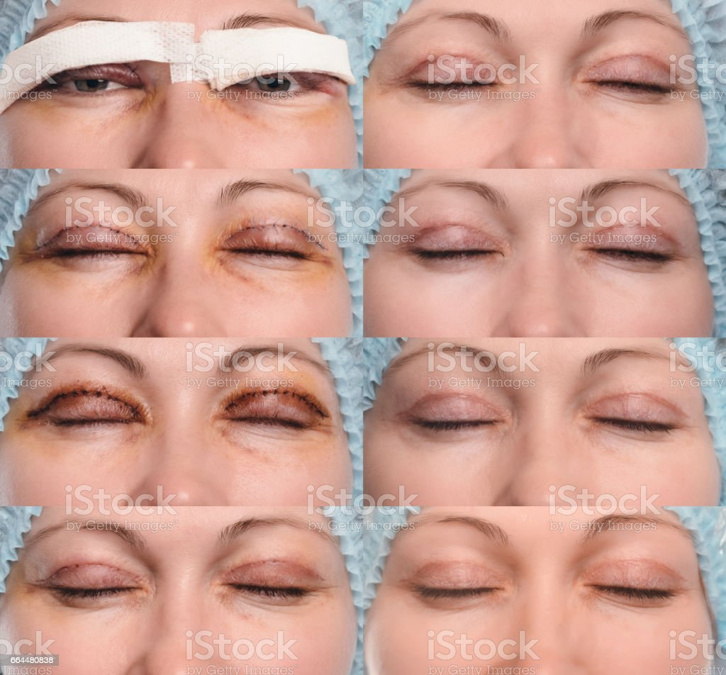 Laser lower eyelid blepharoplasty: real results… | Dr Tai ... |Lower Blepharoplasty Recovery Photos