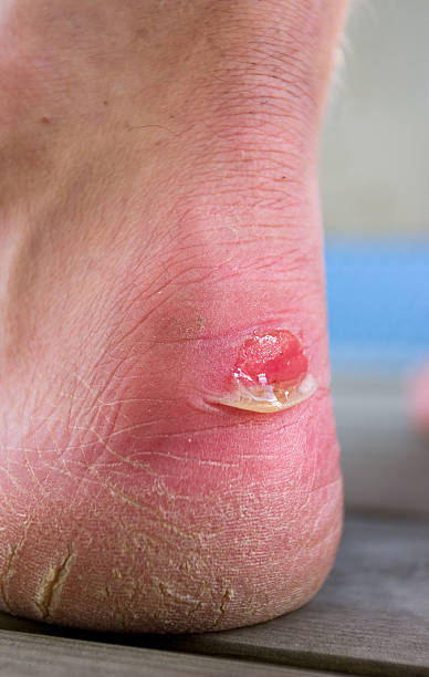 blister heel Close up on human heel with a chafe (blister),  blister stock pictures, royalty-free photos & images