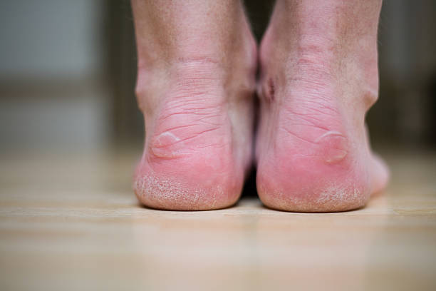 Blister heels Blisters on two heels blister stock pictures, royalty-free photos & images