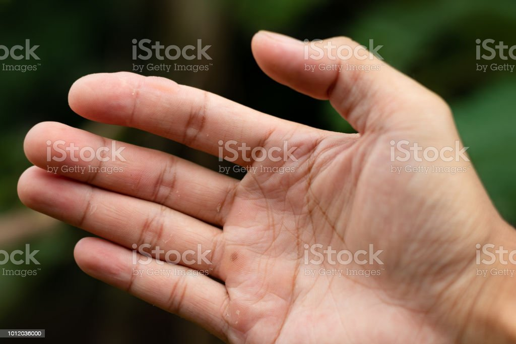 Blisters on finger caused. Injured against. stock photo