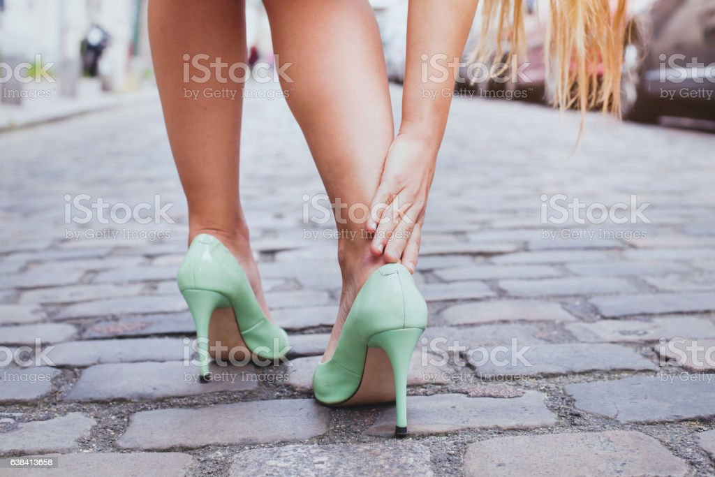 blisters, woman on high heels has difficulties to walk stock photo