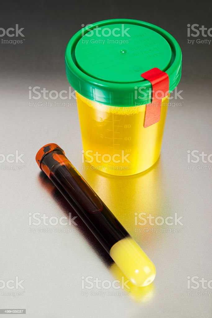 Blood and Urine Samples stock photo