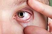 istock Blood capillary human eye 121318811