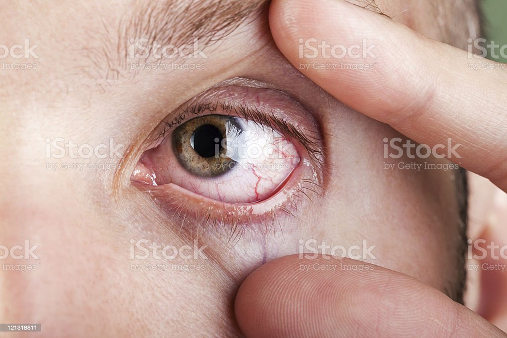 Blood capillary human eye stock photo