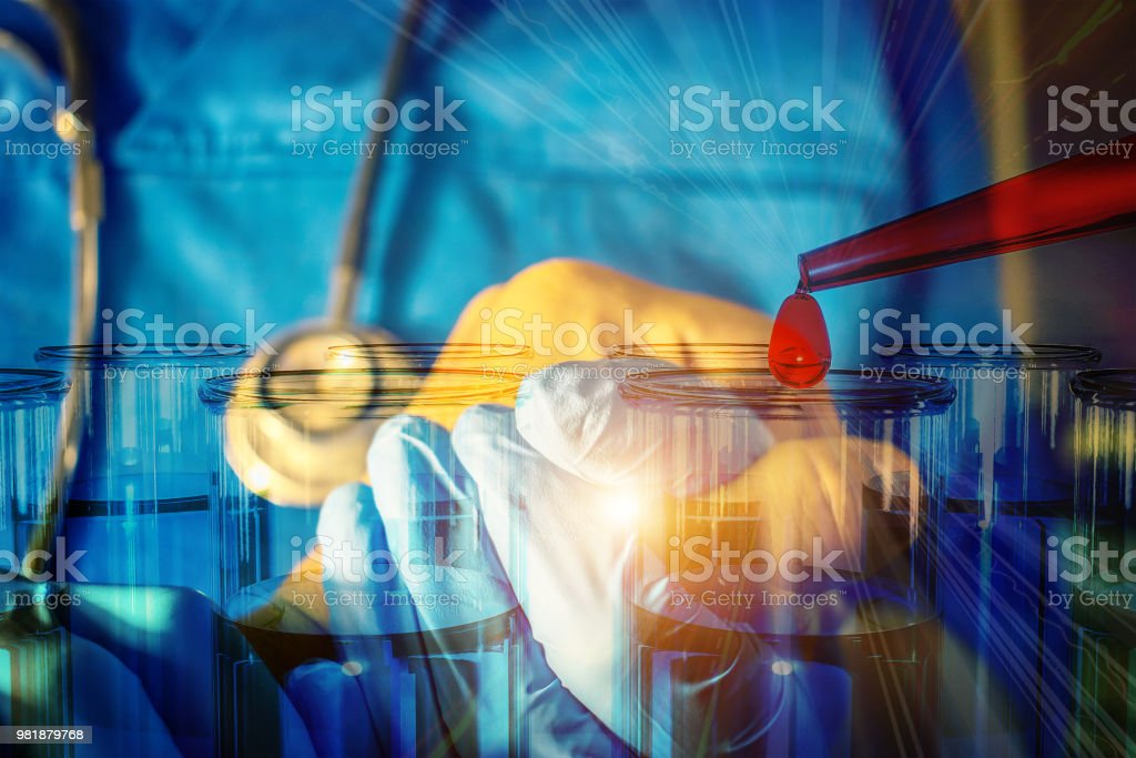 blood cells blood research blood parasites and bacteria viruses allogeneic hematopoietic stem cell transplantation in the four P medicine stock photo