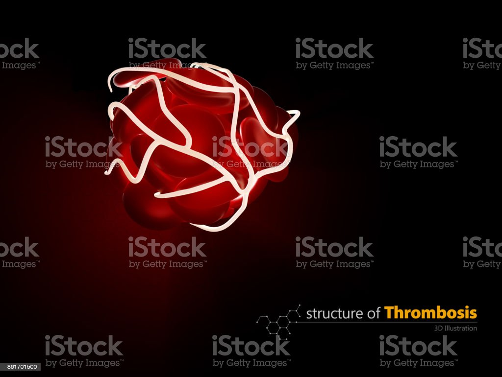 Blood clot and thrombosis, medical 3d illustration concept a health disorder. stock photo