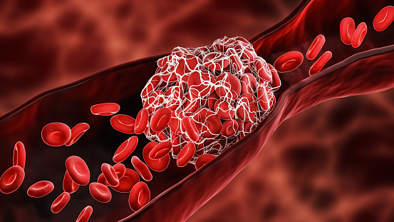 Blood Clot or thrombus blocking the red blood cells stream within an artery or a vein 3D rendering illustration. Thrombosis, cardiovascular system, medicine, biology, health, anatomy, pathology concepts.