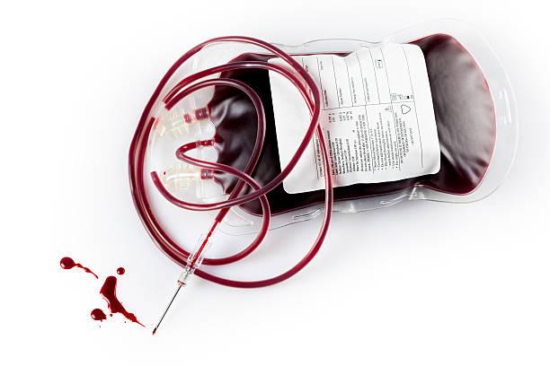 Blutspende Tasche Spritze needle – Foto