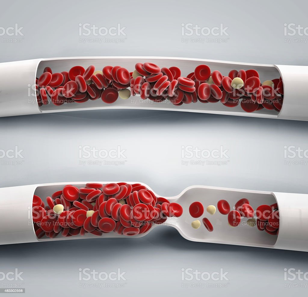 blood flowing and blood clot stock photo