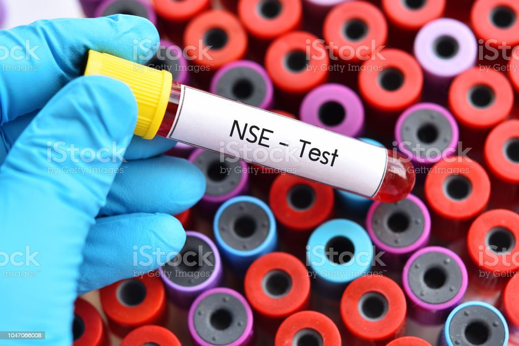 Blood for Neuron-Specific Enolase or NSE test stock photo