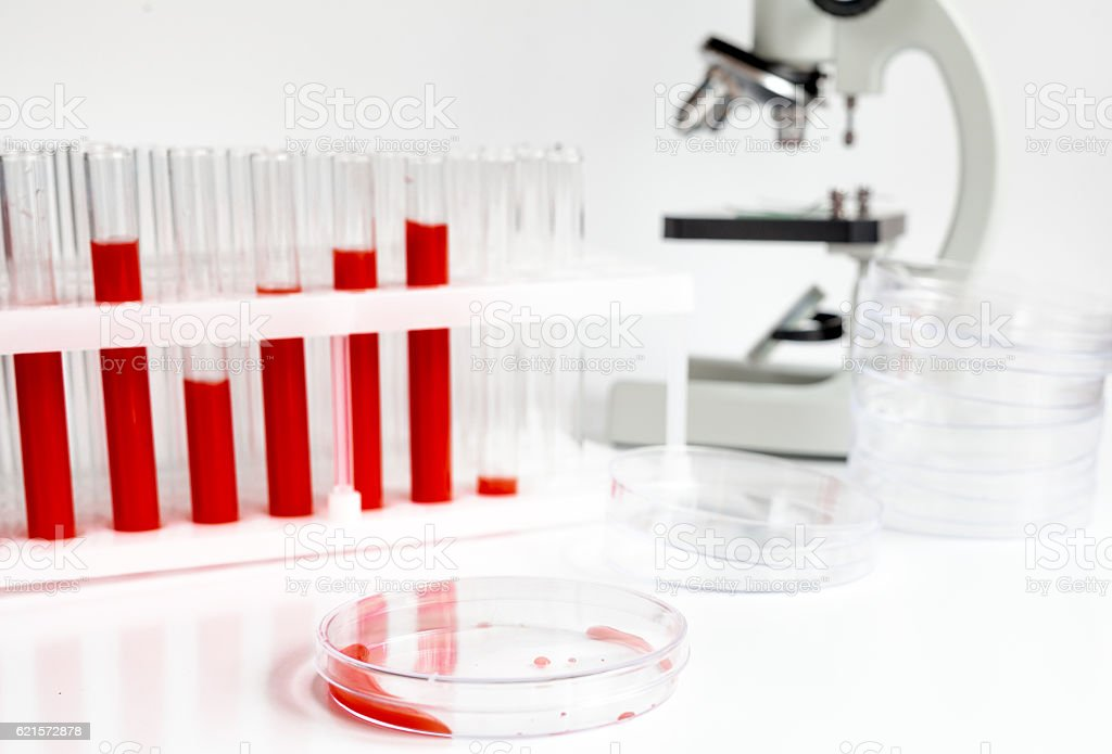 blood in glass tubes, petri dish on background of microscope photo libre de droits